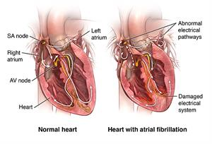 Normal heart and heart with atrial fibrillation